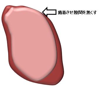 看護 術 胸膜 癒着 EBMの手法による肺癌診療ガイドライン2015年版